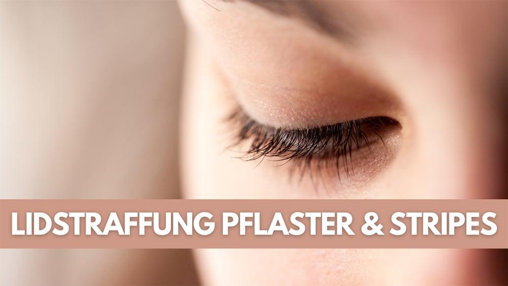 LIDSTRAFFUNG PFLASTER & STIPES